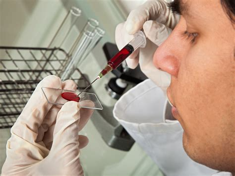 Liquid Biopsy May Guide Treatment Decision in Bladder Cancer